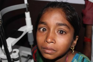 An young Indian girl with severe cataract problems